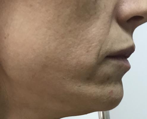 Kako se pomladiti - stanje prije primjene skinboostera