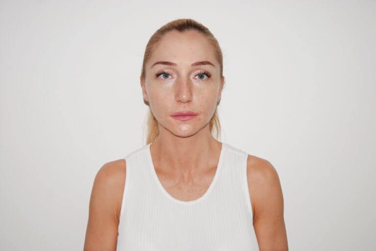 Neposredno nakon tretmana skinboosterom