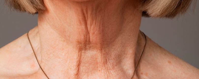 Suha koža - vrat