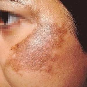 Hiperpigmentacija - 1
