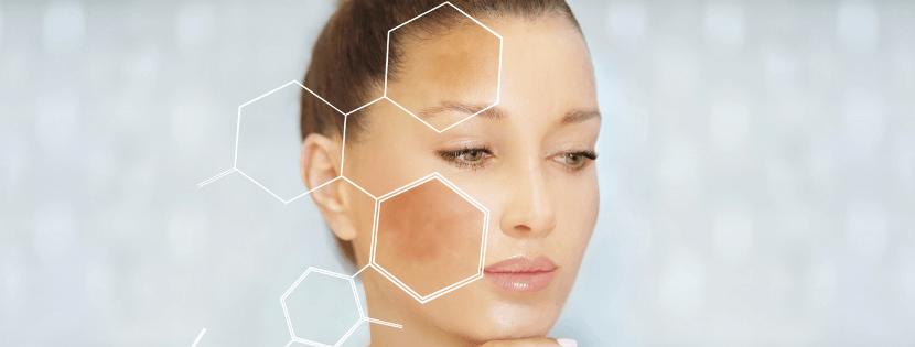 Hiperpigmentacija i kako je se riješiti po savjetu dr. Nevie Delalle